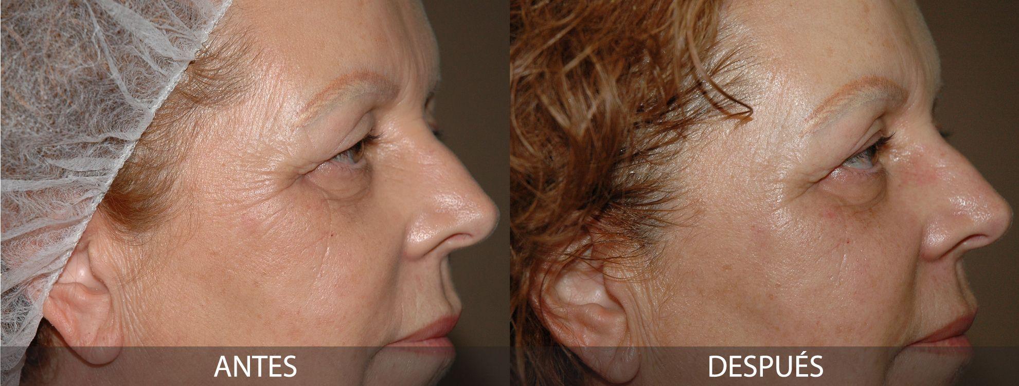 Kosei Tratamiento Antiarrugas