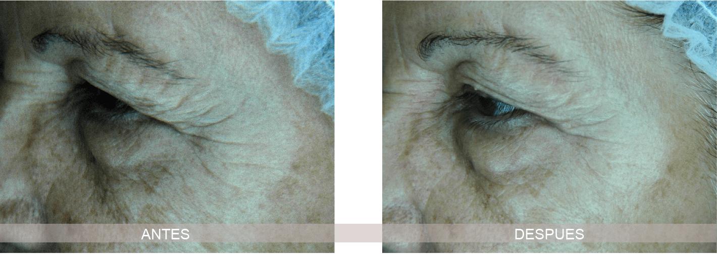 Tratamiento antiarrugas - Kosei