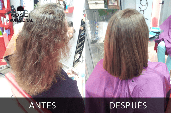 antes despues T LISS 1