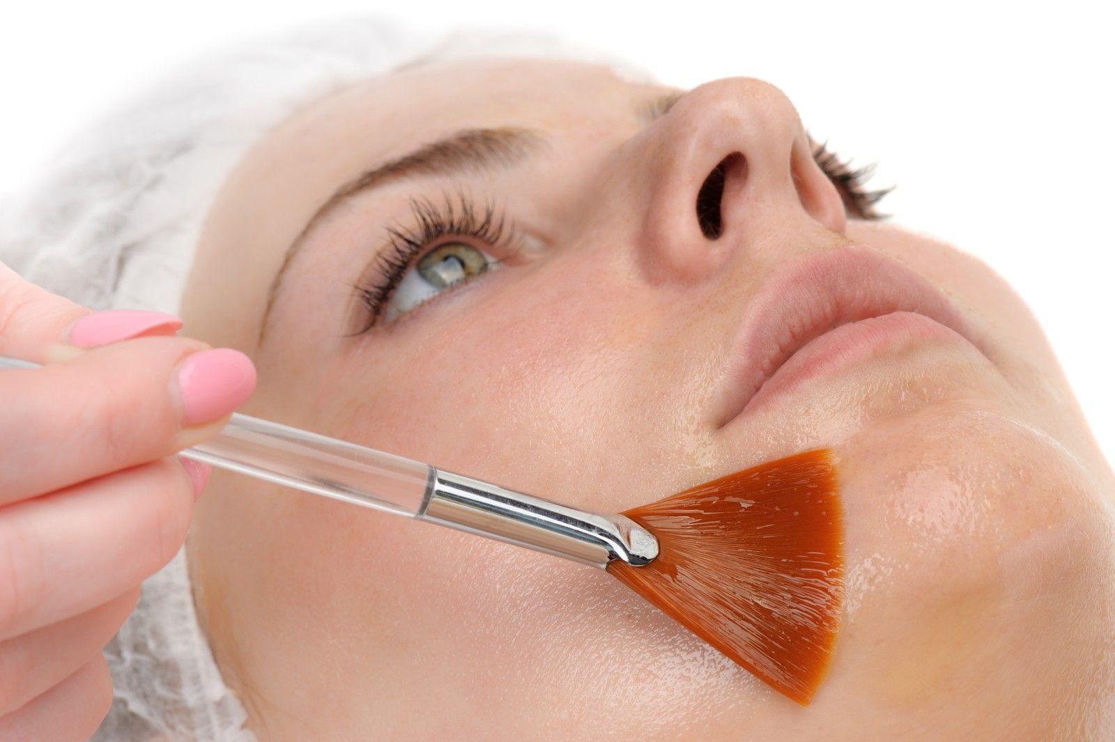 peeling corporal cancer piel