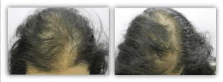 antes-y-después-tratamiento-anticaida-tricoxil