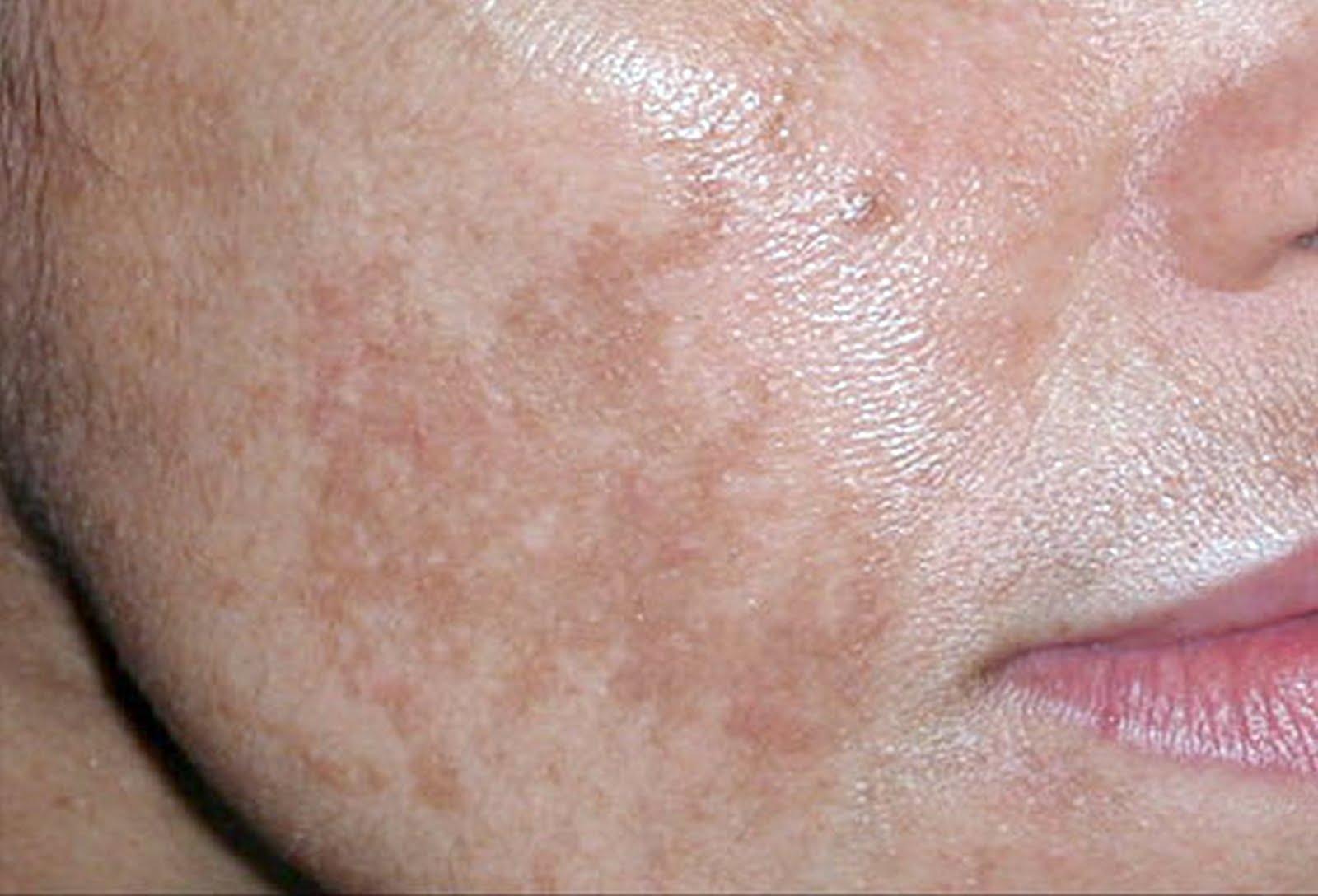 usa proteccion solar tu piel te lo agradecera