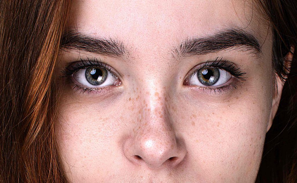 Tratamiento para las manchas marrones en la piel