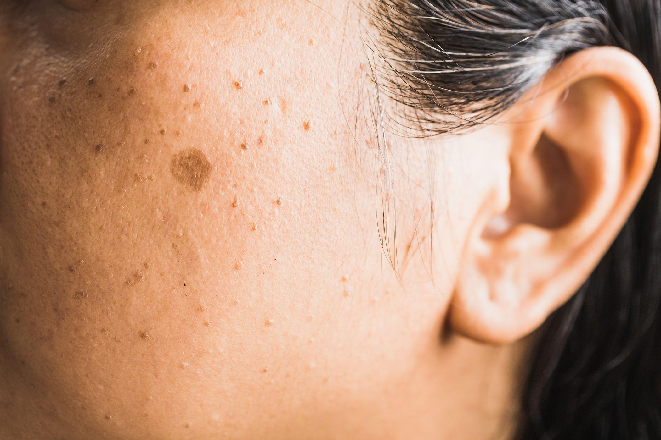 Como eliminar las manchas marrones en la piel.